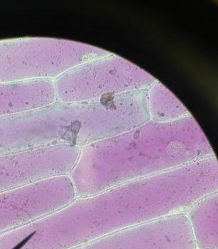 mikroskopische-aufnahmen-von-zellen-1